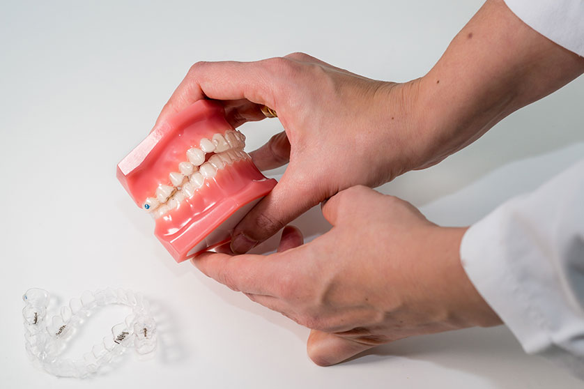 tipo-de-mordida-dental